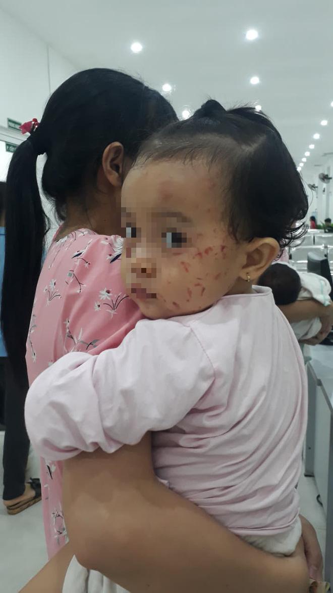 Xôn xao thông tin bé gái bị chấn thương đầu, mặt đầy vết cào xước sau khi đi nhà trẻ - Ảnh 2