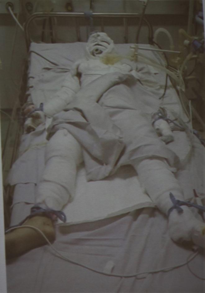 Cha hút thuốc trong nhà làm nổ bình gas, con gái 10 tuổi nguy kịch vì bỏng nặng - Ảnh 1