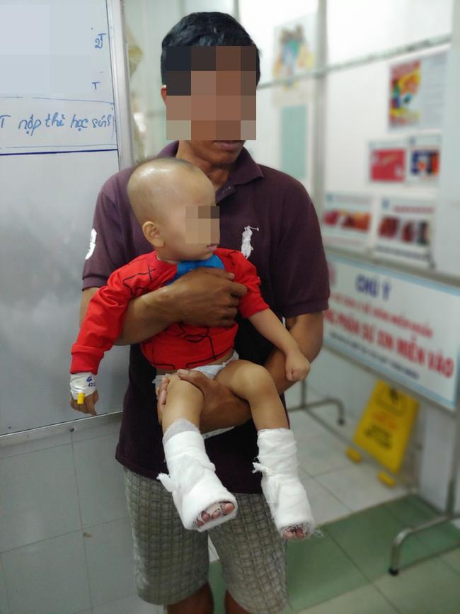 Cha hút thuốc trong nhà làm nổ bình gas, con gái 10 tuổi nguy kịch vì bỏng nặng - Ảnh 2