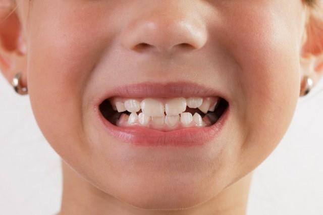 Lắng nghe ngay bác sĩ nha khoa chỉ điểm một số nguyên nhân gây ra hiện tượng nghiến răng ken két ở trẻ nhỏ - Ảnh 3