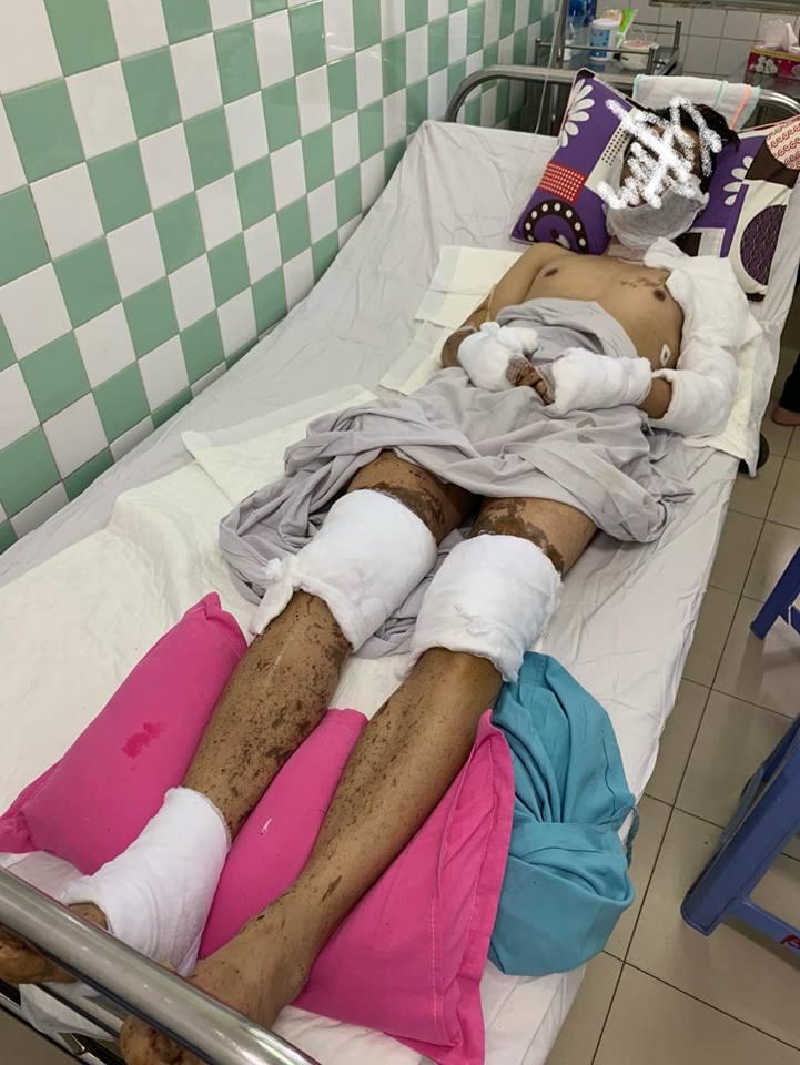 Việt kiều bị tạt axit, cắt gân chân: Bạn gái tiết lộ tình hình sức khỏe của bạn trai sau nhiều ngày điều trị tại Thái Lan - Ảnh 3