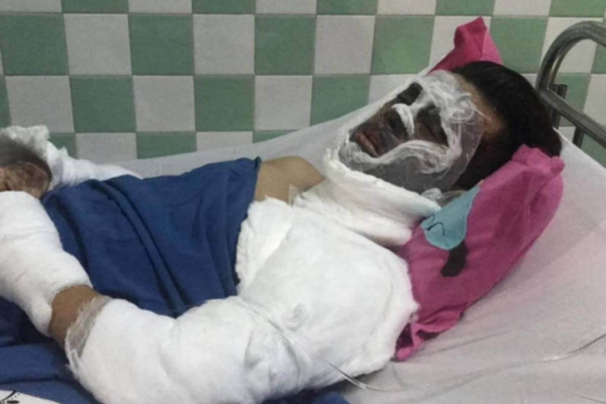 Việt kiều bị tạt axit, cắt gân chân: Bạn gái tiết lộ tình hình sức khỏe của bạn trai sau nhiều ngày điều trị tại Thái Lan - Ảnh 1