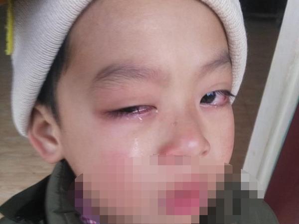 Cô giáo bị tố dùng thước đánh sưng mắt học sinh, phải phẫu thuật 2 lần và có nguy cơ bị mù  - Ảnh 1