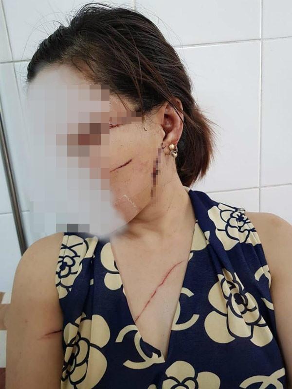 Nghi án cụ ông 61 tuổi sát hại vợ đi xuất khẩu lao động 20 năm về vì ghen tuông - Ảnh 2