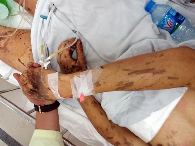 Nhiều tình tiết mới trong vụ tạt axit, cắt gân chân - Ảnh 1