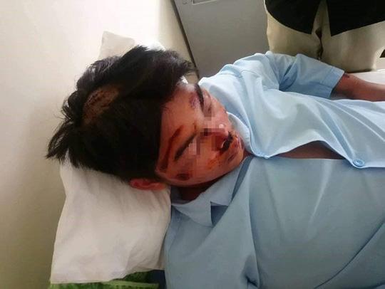 2 học sinh nhập viện sau khi đánh nhau - Ảnh 1