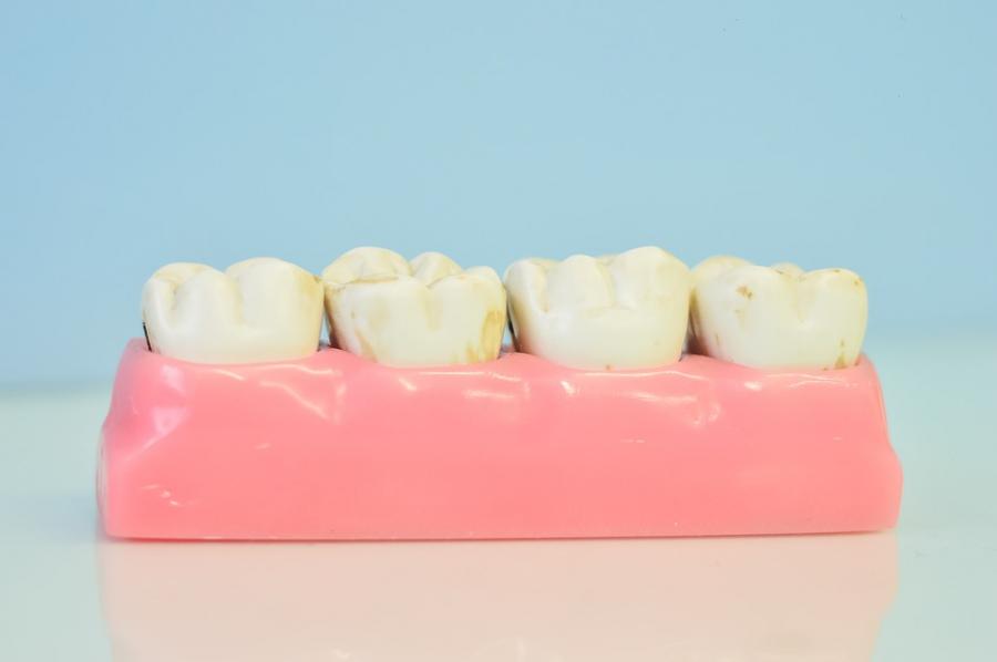 Răng trắng bóc sau khi tẩy bằng baking soda nhưng lợi bất cập hại - Ảnh 2