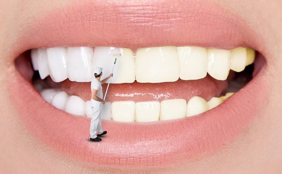 Răng trắng bóc sau khi tẩy bằng baking soda nhưng lợi bất cập hại - Ảnh 5
