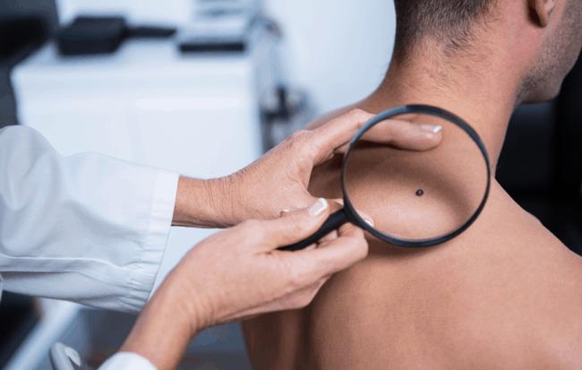 Ung thư da dễ xuất hiện ở 6 vùng này trước tiên: Hãy cẩn thận đi khám nếu thấy bất thường - Ảnh 1