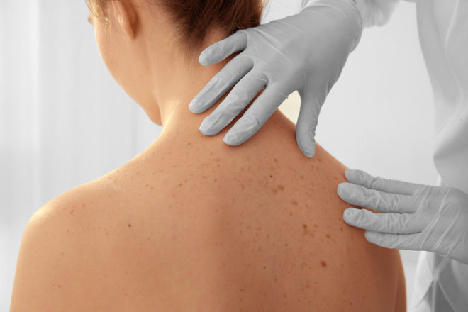 Ung thư da dễ xuất hiện ở 6 vùng này trước tiên: Hãy cẩn thận đi khám nếu thấy bất thường - Ảnh 4