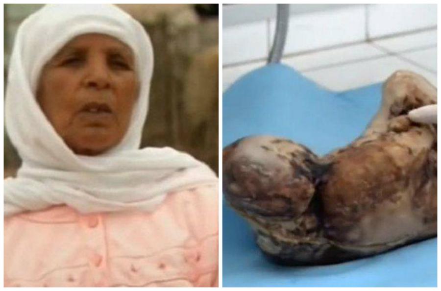 Mang thai suốt 46 năm nhưng không đẻ, tới lúc mổ lấy thai bác sĩ choáng váng trước hình dạng thai nhi - Ảnh 2
