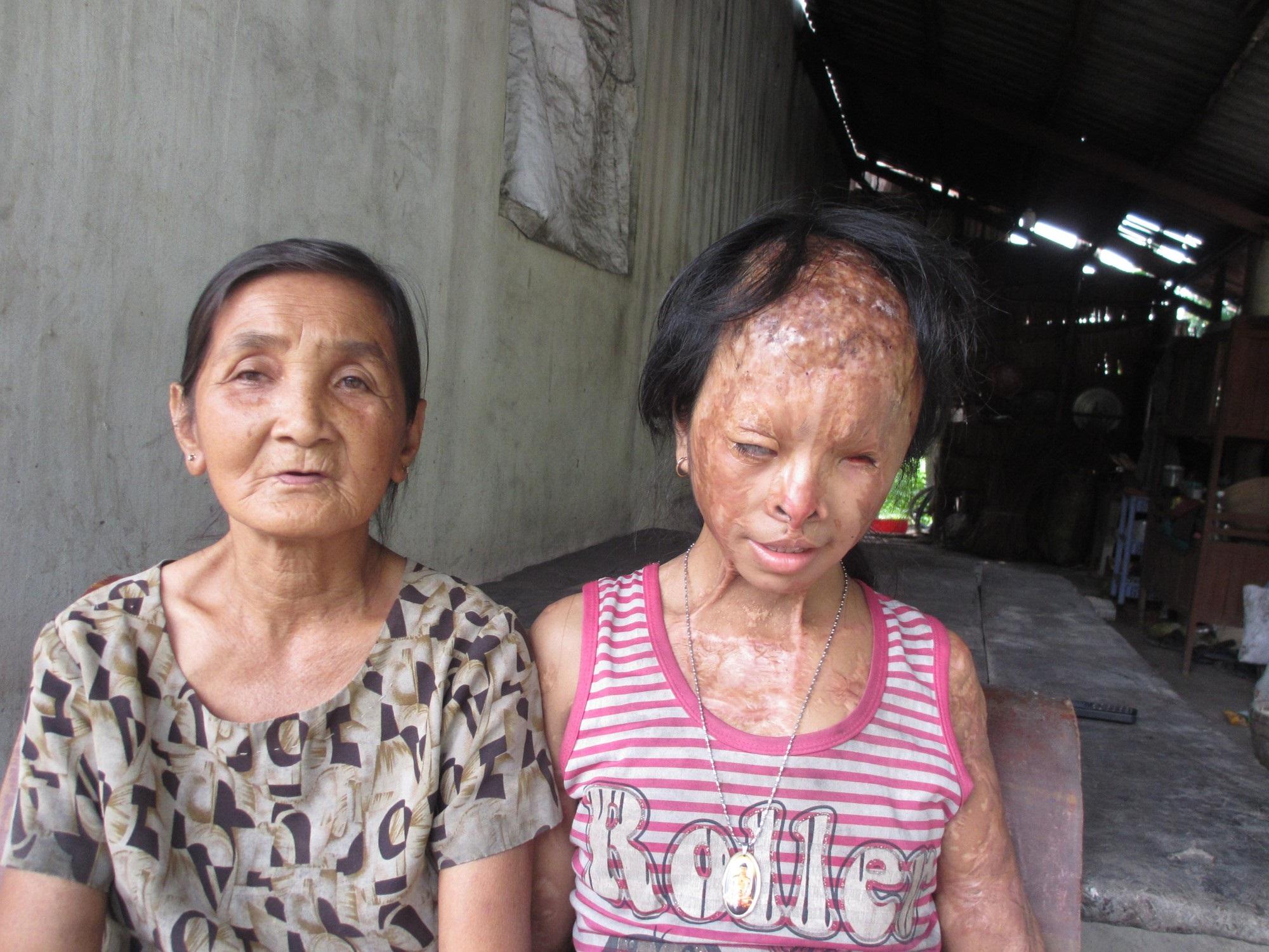 Bà nội bé gái bị tạt axit năm 7 tuổi vì mẹ 'giật chồng' người khác: Tôi muốn xin đôi mắt của tử tù Nguyễn Hữu Tình để cứu cháu - Ảnh 1