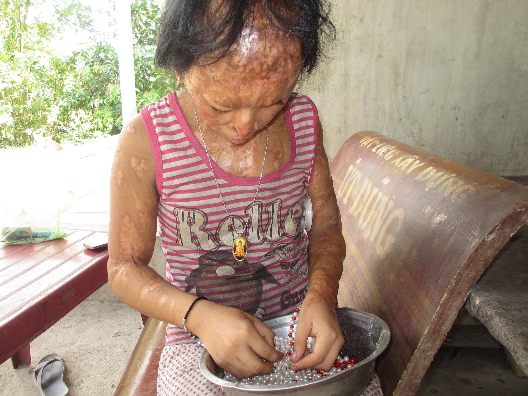 Bà nội bé gái bị tạt axit năm 7 tuổi vì mẹ 'giật chồng' người khác: Tôi muốn xin đôi mắt của tử tù Nguyễn Hữu Tình để cứu cháu - Ảnh 2