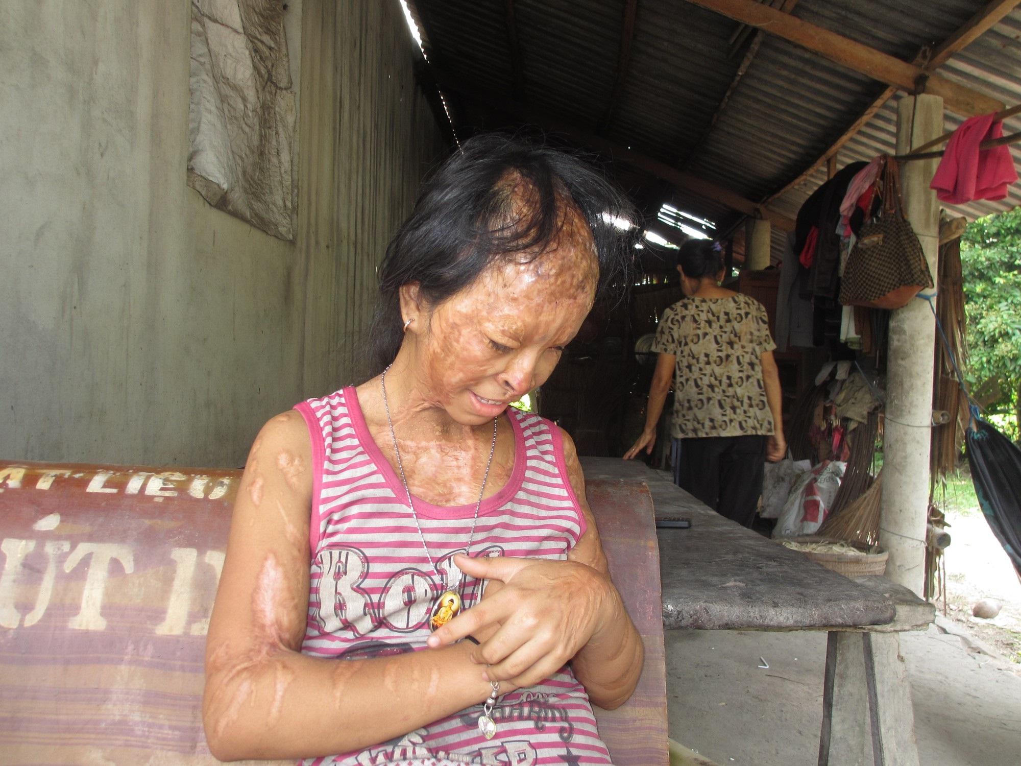 Bà nội bé gái bị tạt axit năm 7 tuổi vì mẹ 'giật chồng' người khác: Tôi muốn xin đôi mắt của tử tù Nguyễn Hữu Tình để cứu cháu - Ảnh 3