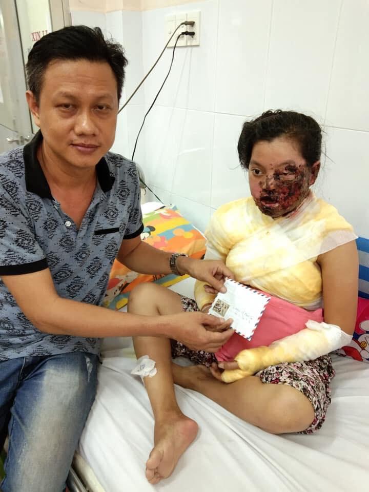 Nỗi lòng của người mẹ nữ công nhân bị keo nóng hủy hoại khuôn mặt khi đang làm việc - Ảnh 3