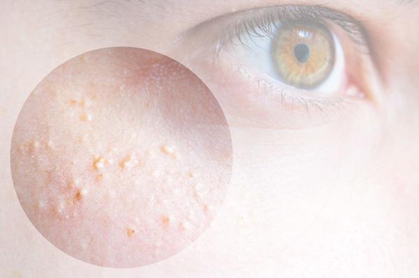 Mụn thịt quanh mắt to cỡ nào cũng phải nặn với 3 phương pháp hiệu quả này - Ảnh 1