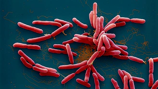 Vi khuẩn Whitmore bị nhầm với 'khuẩn ăn thịt người' - Ảnh 1