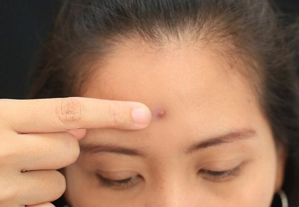 Nặn sạch mụn và đảm bảo da được sát trùng sau khi nặn