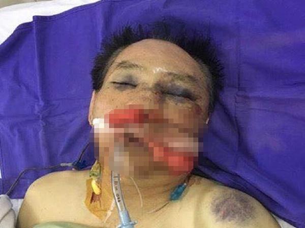 Nguyên đại tá công an đánh vợ chồng anh trai dập phổi - Ảnh 1