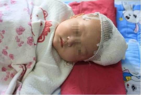 Bé 4 tháng bị tràn dịch não vì cách chăm sóc sai lầm nhiều mẹ Việt hay mắc - Ảnh 2
