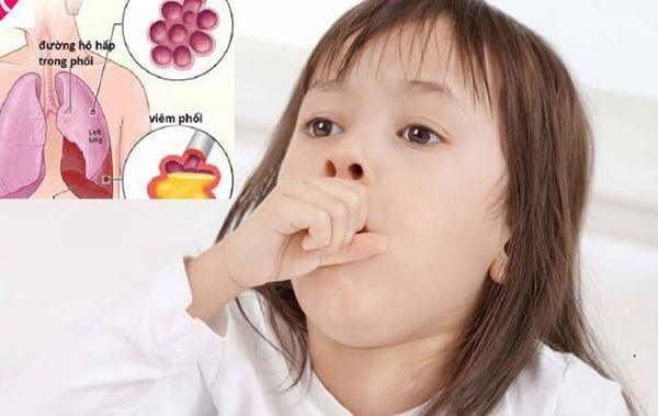 Viêm phổi: Dấu hiệu nhận biết, cách điều trị và chăm sóc trẻ - Ảnh 2