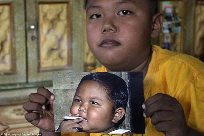 7 năm tuổi ấu thơ cơ cực của cậu bé hút 40 điếu thuốc mỗi ngày, bị ví là 'nô lệ tí hon' của thuốc lá và hành trình tìm lại chính mình khiến cả thế giới kinh ngạc - Ảnh 2