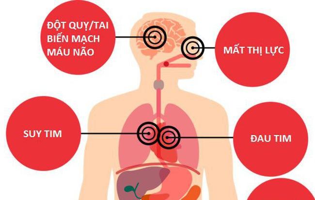 Nếu mang bệnh này, hãy cảnh giác 'cái chết bất ngờ' có thể đến vào tháng 2, tháng 7 - Ảnh 2