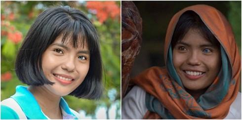Cô gái Việt Nam xinh đẹp có đôi mắt hai màu: Căn bệnh hiếm gặp trên thế giới - Ảnh 1
