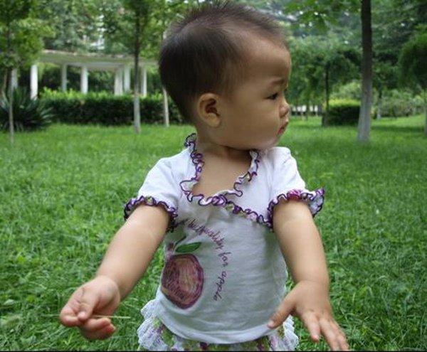 Con gái xương ngực như 'ức gà', mẹ trẻ hối hận vì nghe mẹ chồng nuôi con sai cách - Ảnh 1