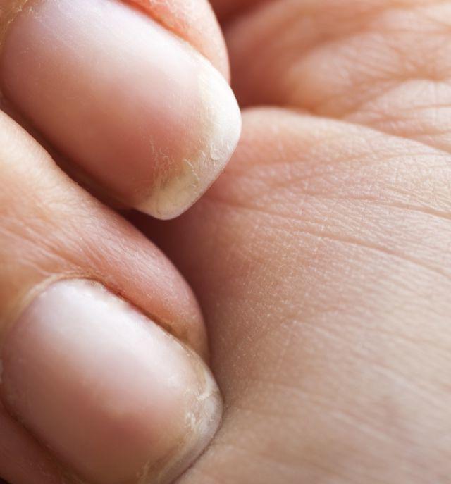 10 dấu hiệu thường gặp tưởng đơn giản nhưng chứng tỏ bạn đang thiếu vitamin quan trọng - Ảnh 7
