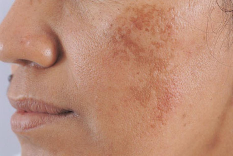 Những phương pháp trị nám da mặt giúp bạn sở hữu làn da 'không tì vết' - Ảnh 1