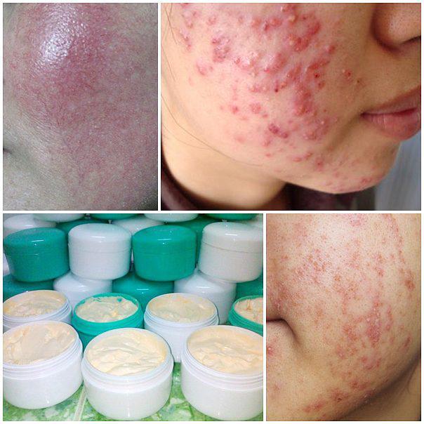 Cách thải độc cho da khi nhiễm corticoid từ kem trộn - Ảnh 1