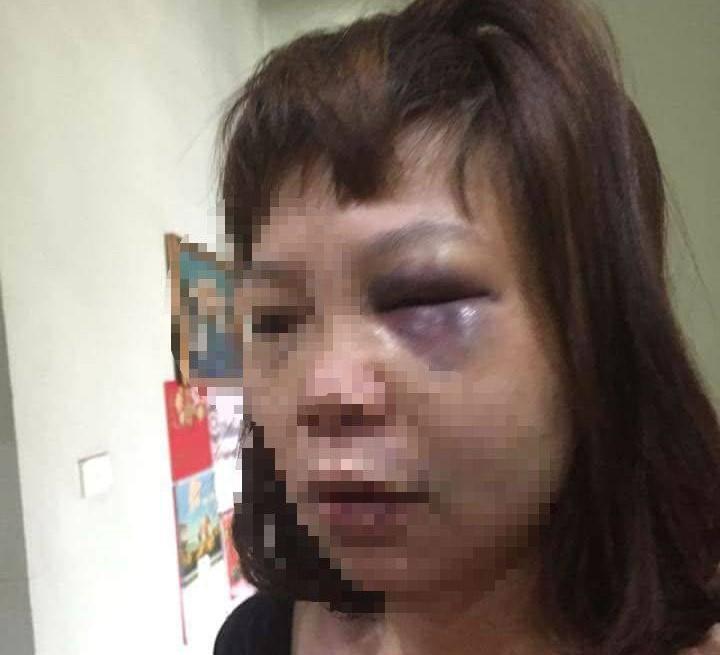 Khởi tố người chồng đưa vợ lên đồi vắng bạo hành dã man - Ảnh 1