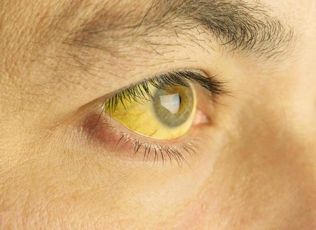 Nếu 4 dấu hiệu này xuất hiện trên mặt thì gan đã bị tổn thương trầm trọng, đừng chần chừ mà hãy đi khám gấp - Ảnh 3