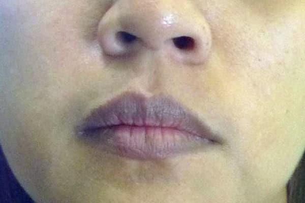 Nếu 4 dấu hiệu này xuất hiện trên mặt thì gan đã bị tổn thương trầm trọng, đừng chần chừ mà hãy đi khám gấp - Ảnh 4