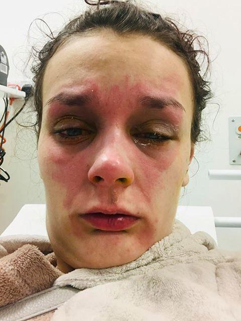 Luộc trứng bằng lò vi sóng, cô gái 19 tuổi suýt bị mù vĩnh viễn - Ảnh 2