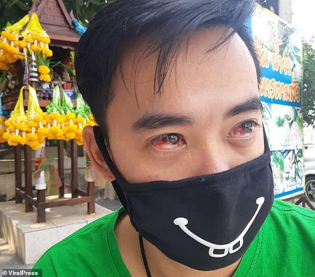 Ô nhiễm không khí ở Bangkok đặc biệt nghiêm trọng: người dân đau mắt, khó thở, hắt hơi ra máu - Ảnh 1
