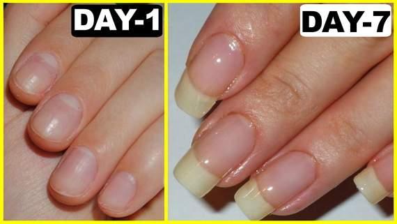 Kích thích móng tay mọc nhanh chỉ sau 1 tuần không cần phải nối móng - Ảnh 2