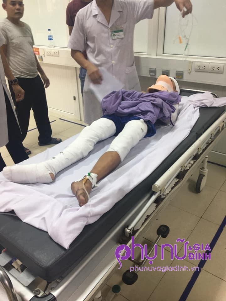 Nhói lòng lời cầu cứu của nam sinh lớp 7 bị cắt cụt 2 tay vì điện giật: 'Xin cứu đôi chân của con' - Ảnh 1