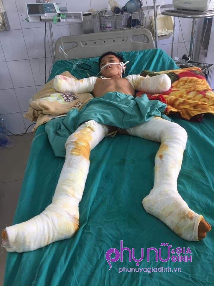Nhói lòng lời cầu cứu của nam sinh lớp 7 bị cắt cụt 2 tay vì điện giật: 'Xin cứu đôi chân của con' - Ảnh 3