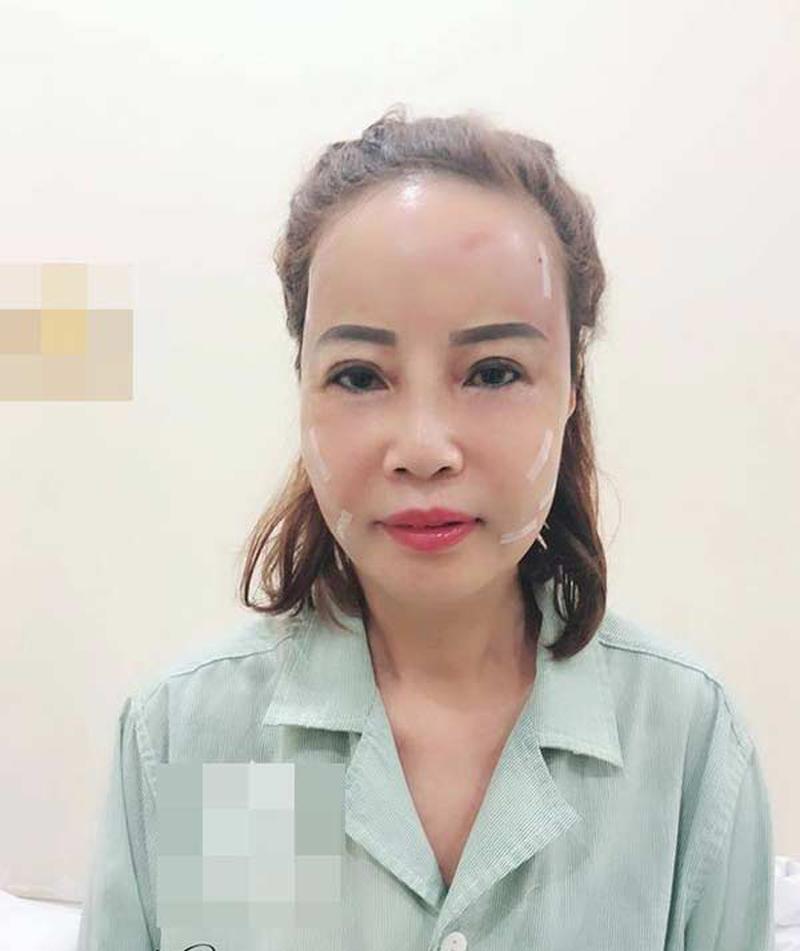 """Hơn chồng 36 tuổi, cô dâu Cao Bằng """"đại tu"""" những bộ phận này để không bị nhầm là MẸ-CON - Ảnh 3"""