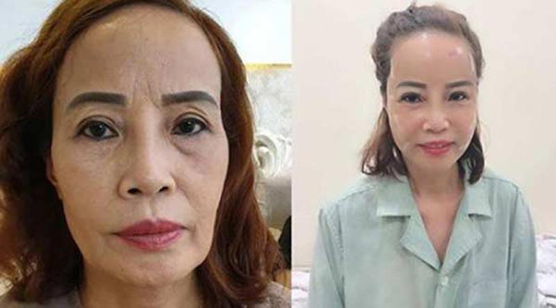 """Hơn chồng 36 tuổi, cô dâu Cao Bằng """"đại tu"""" những bộ phận này để không bị nhầm là MẸ-CON - Ảnh 4"""