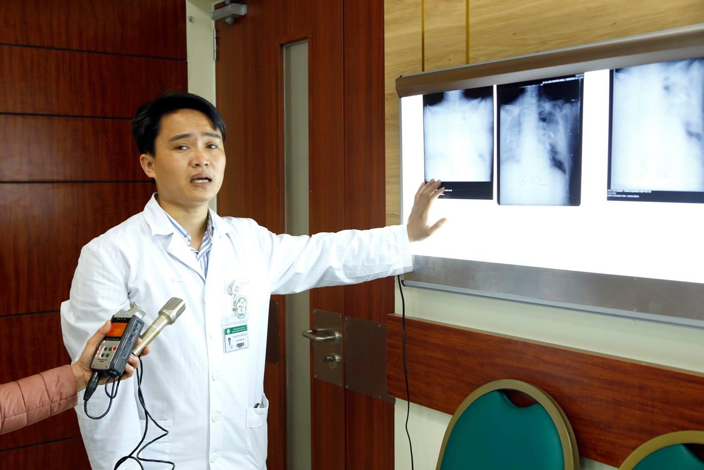 Cúm A/H1N1: Bệnh cúm mùa đang gây nguy hiểm cho nhiều người - Ảnh 3
