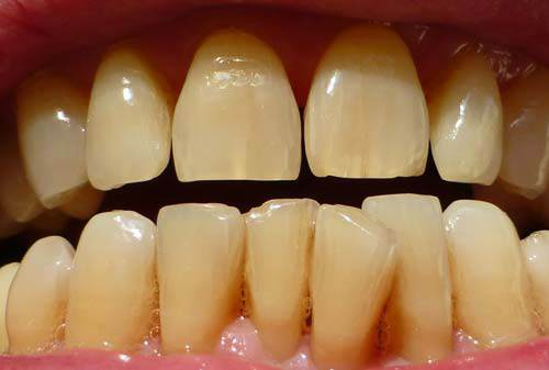 Hết sạch cao răng, mảng bám, ố vàng nếu bạn chà đều đặn thứ này mỗi tối - Ảnh 1