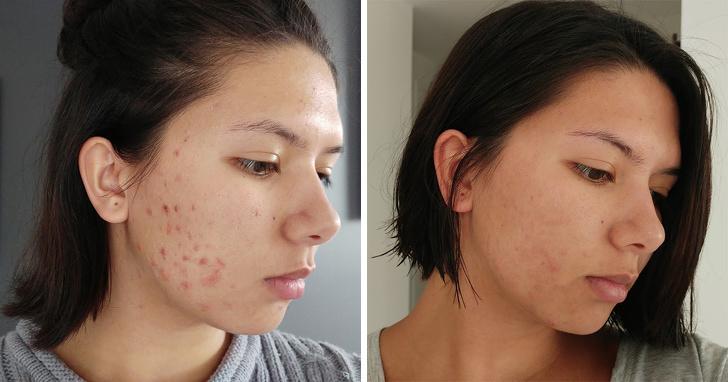 Dùng mỹ phẩm, thuốc đặc trị lẫn liệu pháp tự nhiên mà da vẫn đầy khuyết điểm, hãy thử áp dụng 'thần dược' này  - Ảnh 1