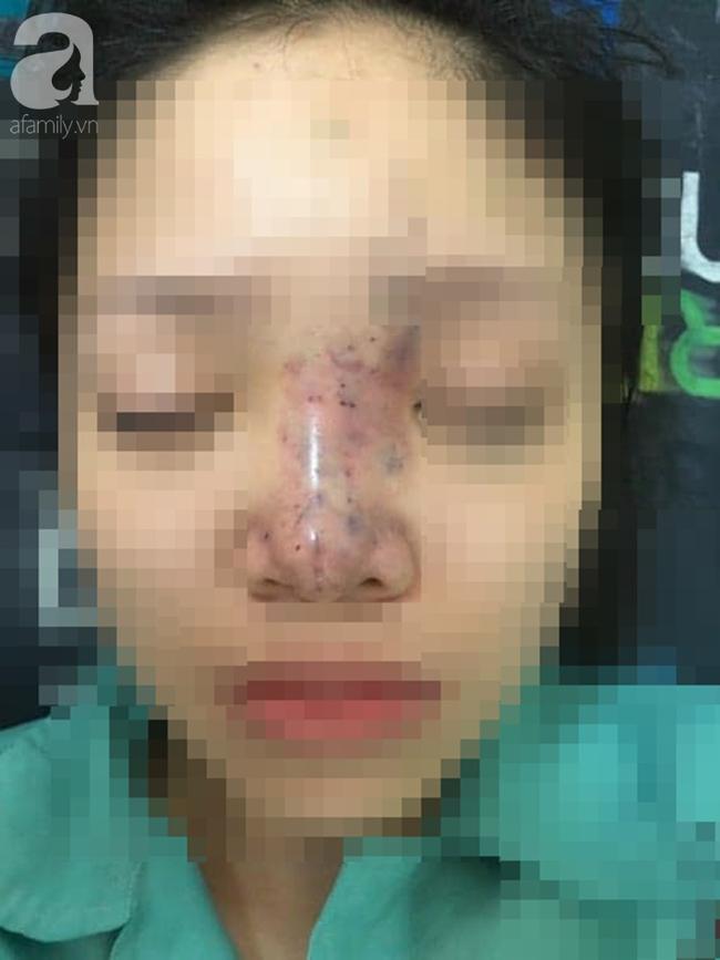 Tiêm filler nâng mũi, nữ sinh viên 20 tuổi ở Sài Gòn đối diện nguy cơ hoại tử da, mù mắt vĩnh viễn - Ảnh 1
