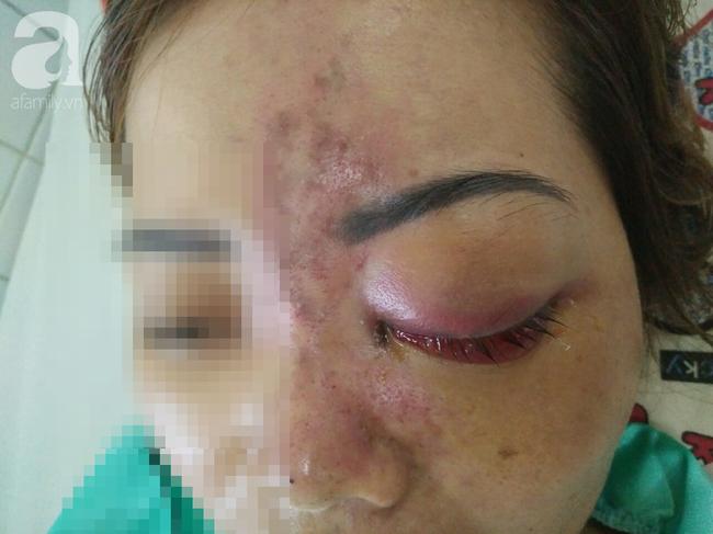 Tiêm filler nâng mũi, nữ sinh viên 20 tuổi ở Sài Gòn đối diện nguy cơ hoại tử da, mù mắt vĩnh viễn - Ảnh 4