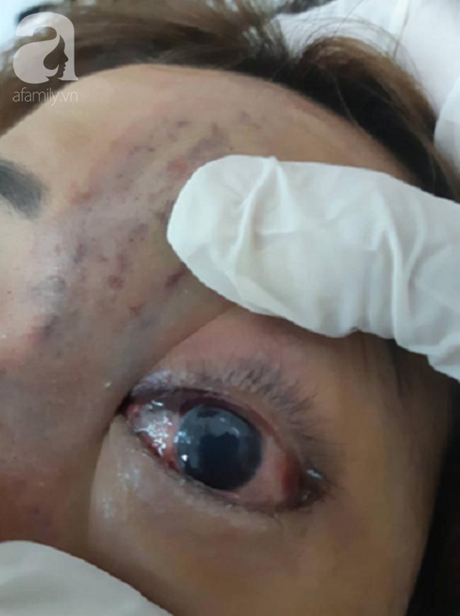 Tiêm filler nâng mũi, nữ sinh viên 20 tuổi ở Sài Gòn đối diện nguy cơ hoại tử da, mù mắt vĩnh viễn - Ảnh 5