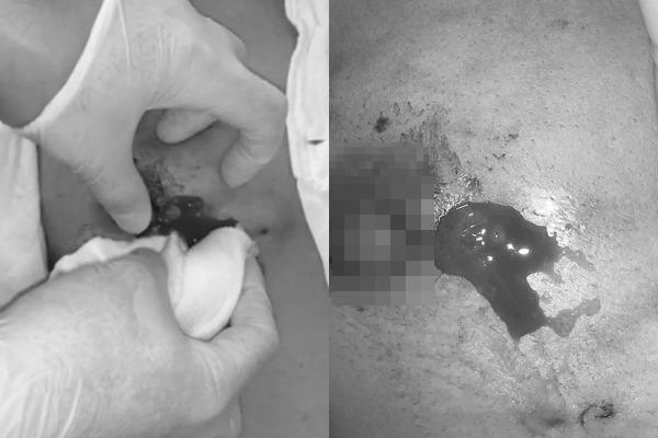 Chuyên gia BV Việt Đức cảnh báo: Cẩn trọng kẻo rước họa vì đi thẩm mỹ - Ảnh 2