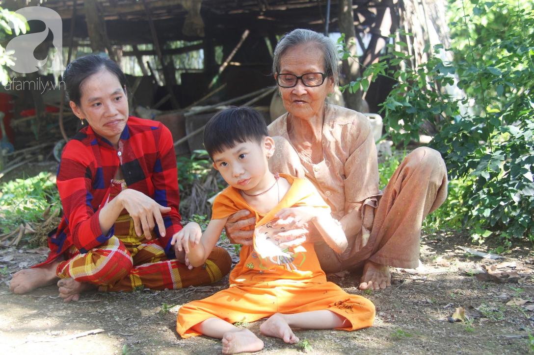 Bố bỏ từ khi chưa sinh ra, bé gái 5 tuổi bại não sống cùng người mẹ tật nguyền cầu xin một lần được chữa bệnh - Ảnh 13